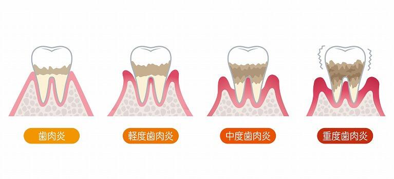 歯周病の症状と進行状態