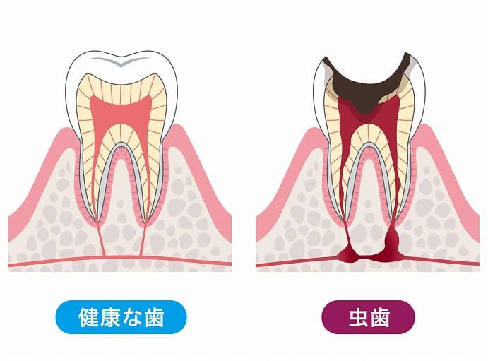 むし歯は早期発見と早期治療が大切です。